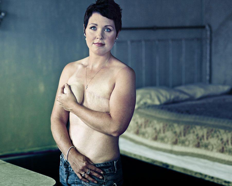 смотреть женщин с удаленной грудью - 12