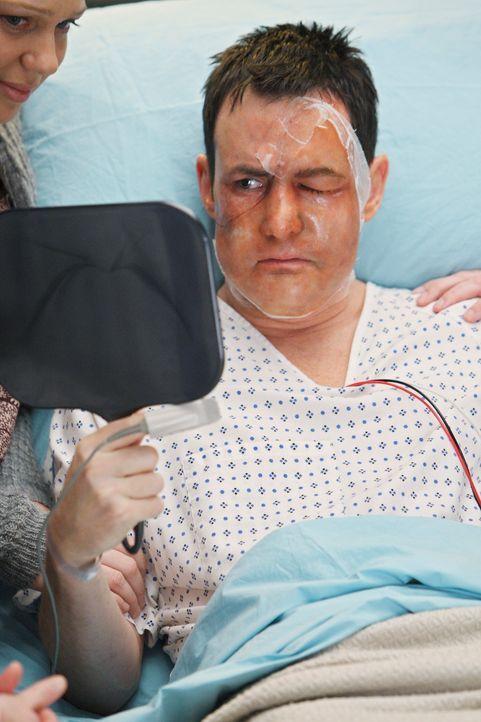 Das Ende eines langen Leidensweg: Dave (Larry Sullivan) hat endlich ein neues Gesicht bekommen ... - Bildquelle: Touchstone Television