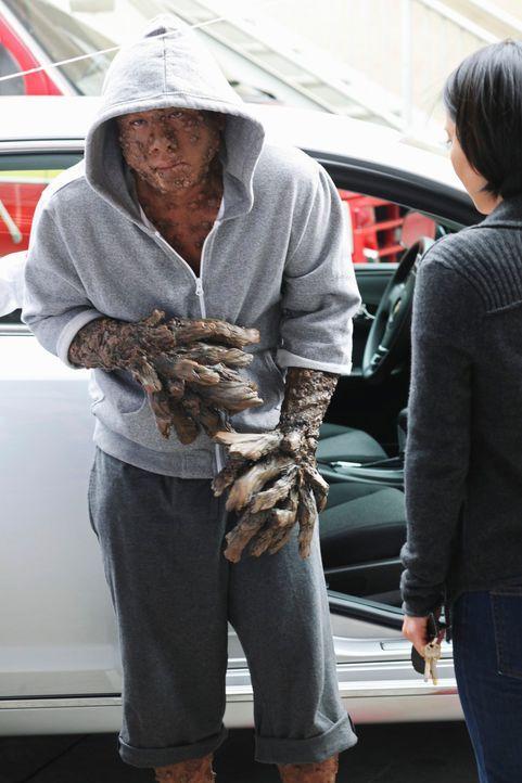 Jerry Adams (Art Chudabala) kommt ins Seattle Grace Hospital und hofft auf Hilfe der Ärzte ... - Bildquelle: ABC Studios