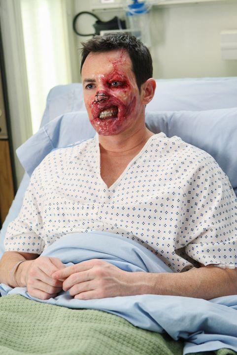 Eine große, spektakuläre Operation steht bevor: Dave Young (Larry Sullivan) soll ein neues Gesicht bekommen ... - Bildquelle: Touchstone Television